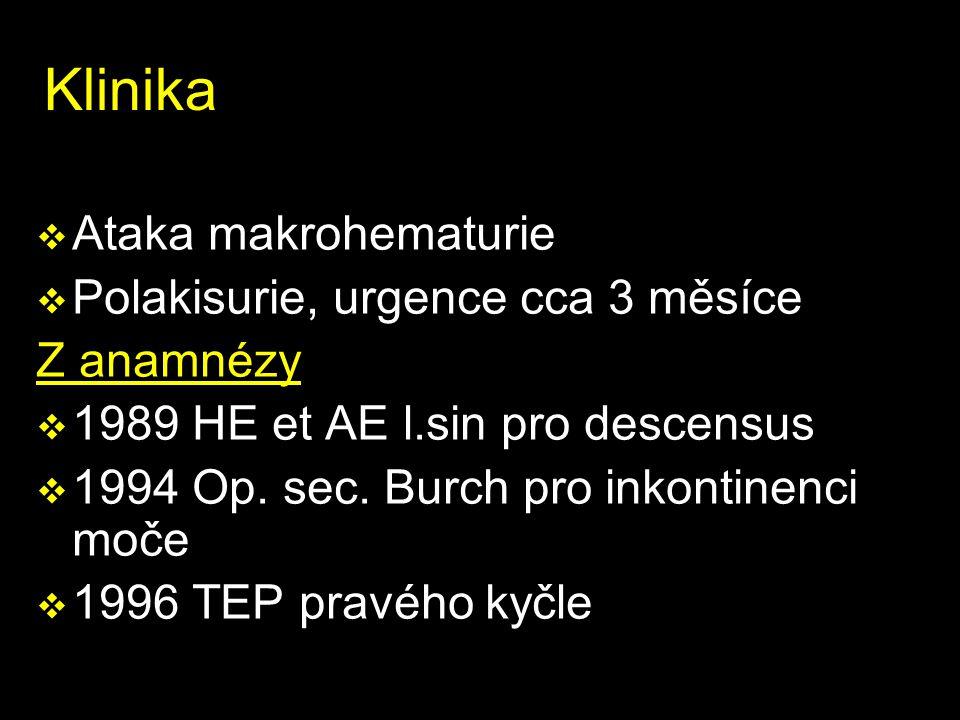 Klinika Ataka makrohematurie Polakisurie, urgence cca 3 měsíce