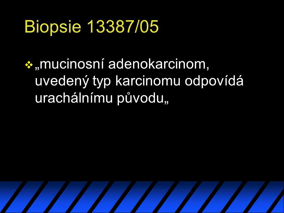 """Biopsie 13387/05 """"mucinosní adenokarcinom, uvedený typ karcinomu odpovídá urachálnímu původu"""""""