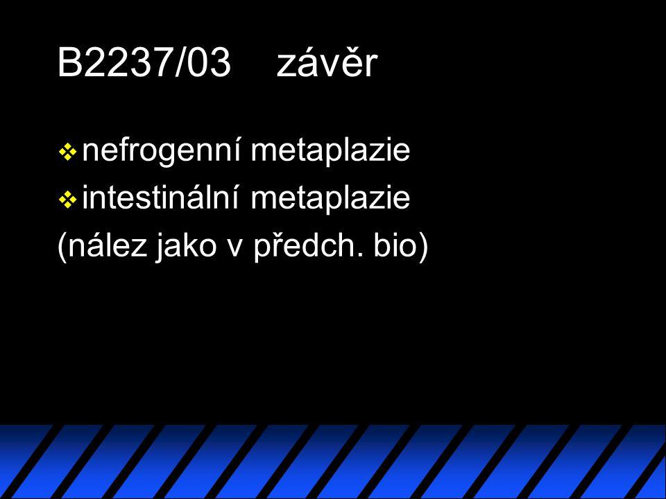 B2237/03 závěr nefrogenní metaplazie intestinální metaplazie