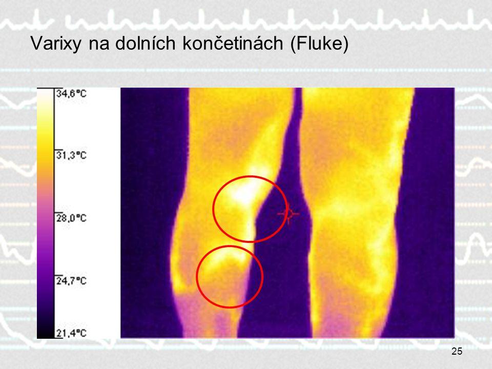 Varixy na dolních končetinách (Fluke)