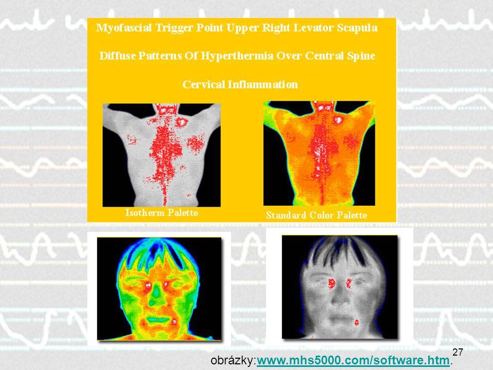 obrázky:www.mhs5000.com/software.htm.