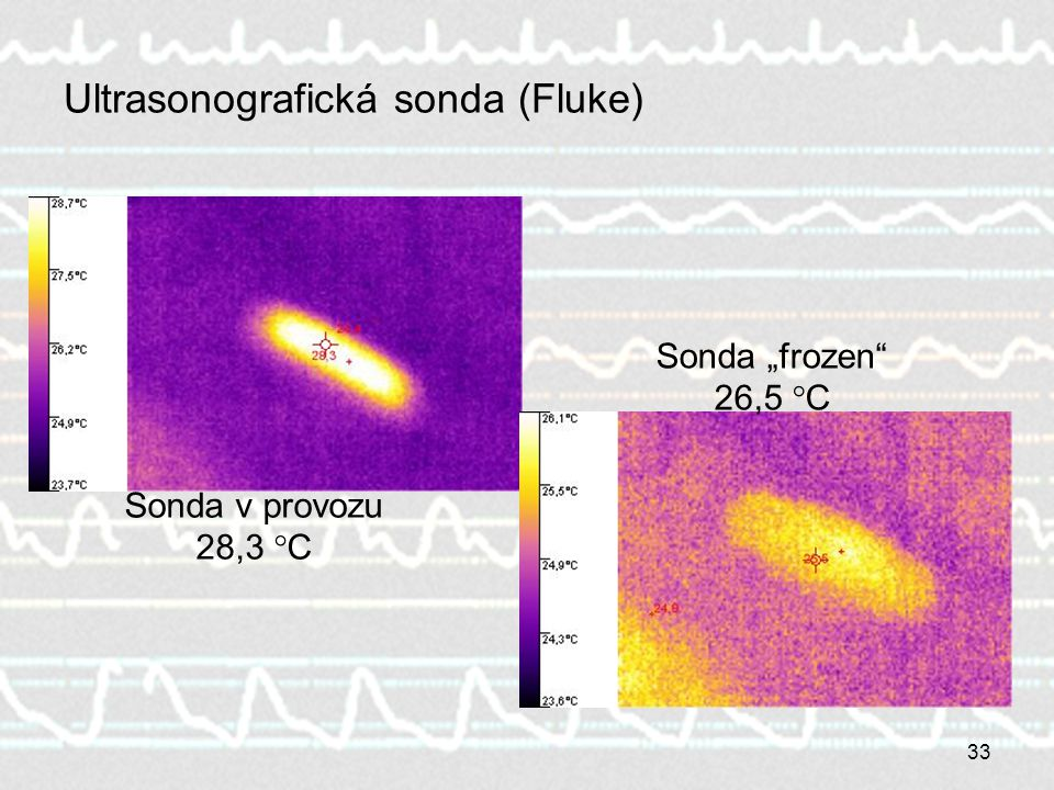 Ultrasonografická sonda (Fluke)