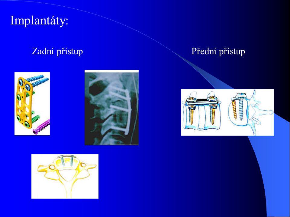 Implantáty: Zadní přístup Přední přístup