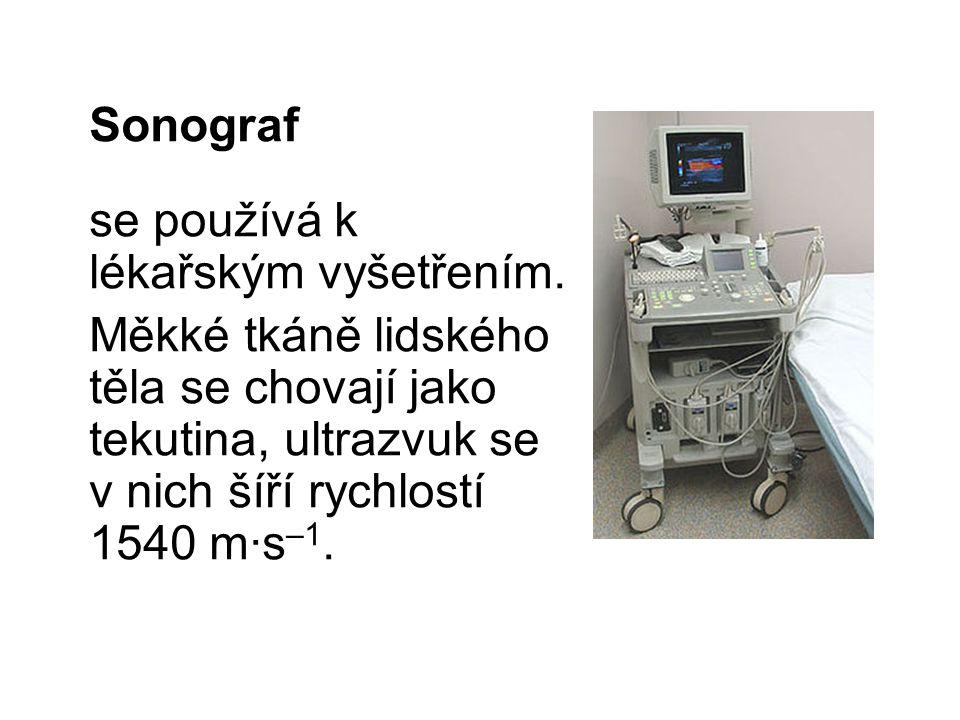 Sonograf se používá k lékařským vyšetřením.