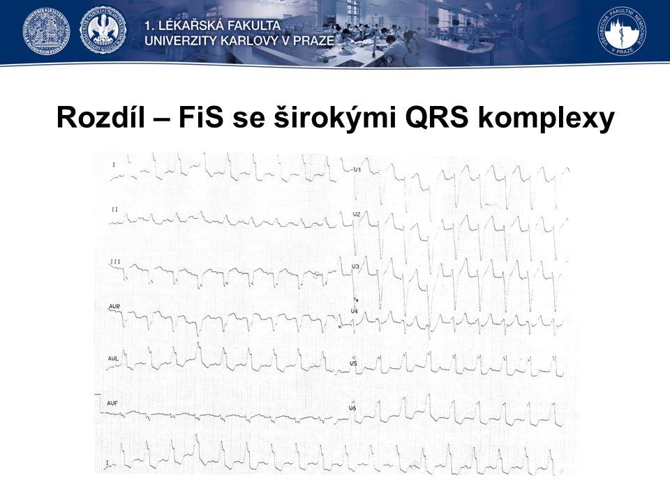 Rozdíl – FiS se širokými QRS komplexy