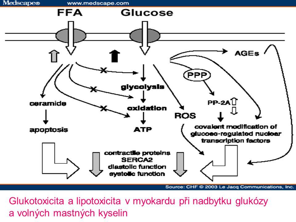 Glukotoxicita a lipotoxicita v myokardu při nadbytku glukózy