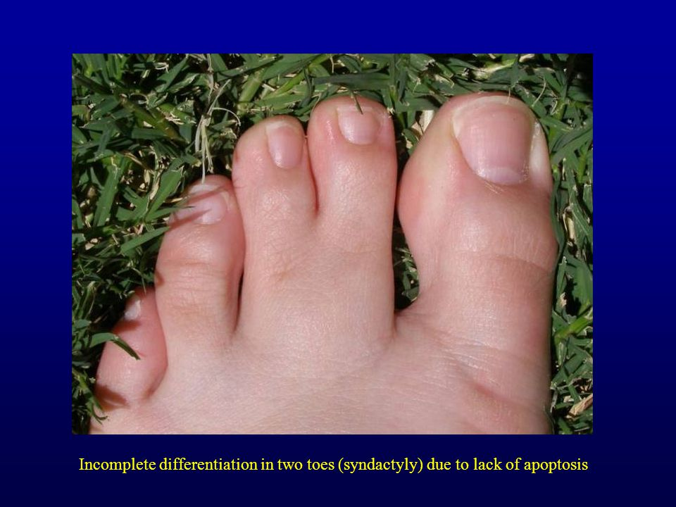Incomplete differentiation in two toes (syndactyly) due to lack of apoptosis