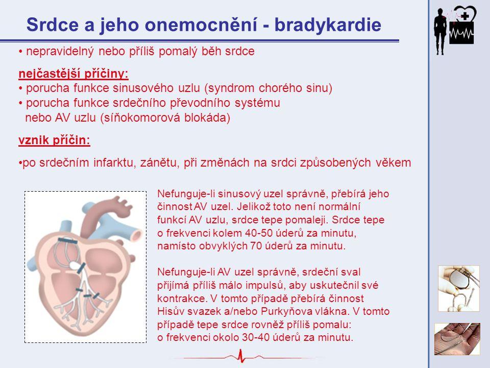 Srdce a jeho onemocnění - bradykardie