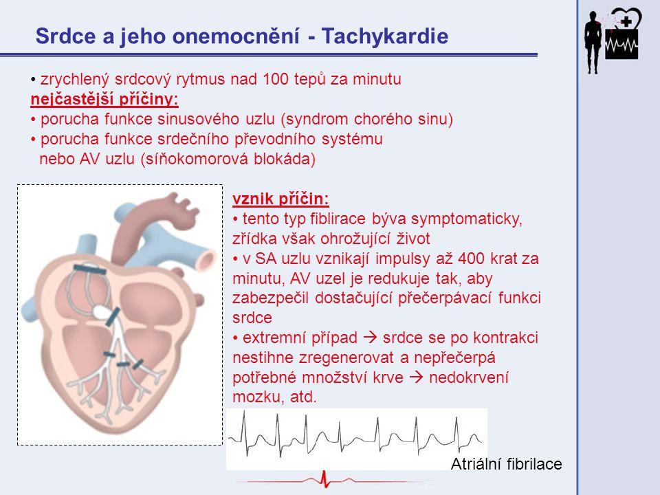 Srdce a jeho onemocnění - Tachykardie