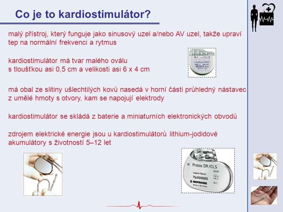 Co je to kardiostimulátor