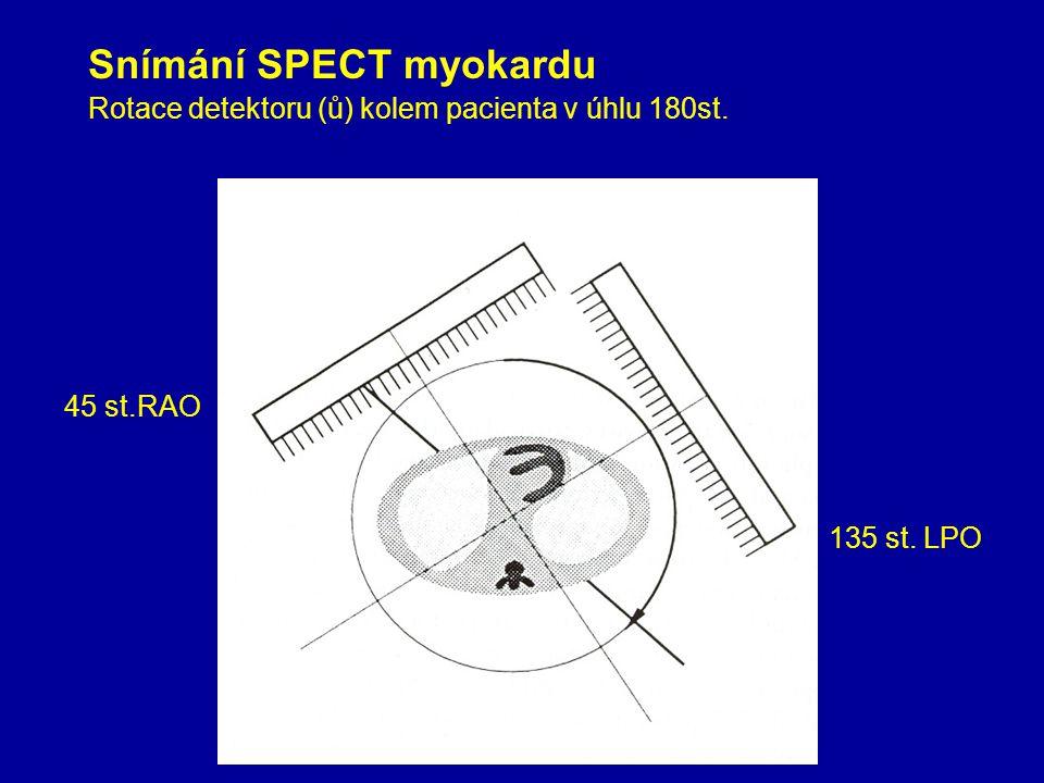Rotace detektoru (ů) kolem pacienta v úhlu 180st.