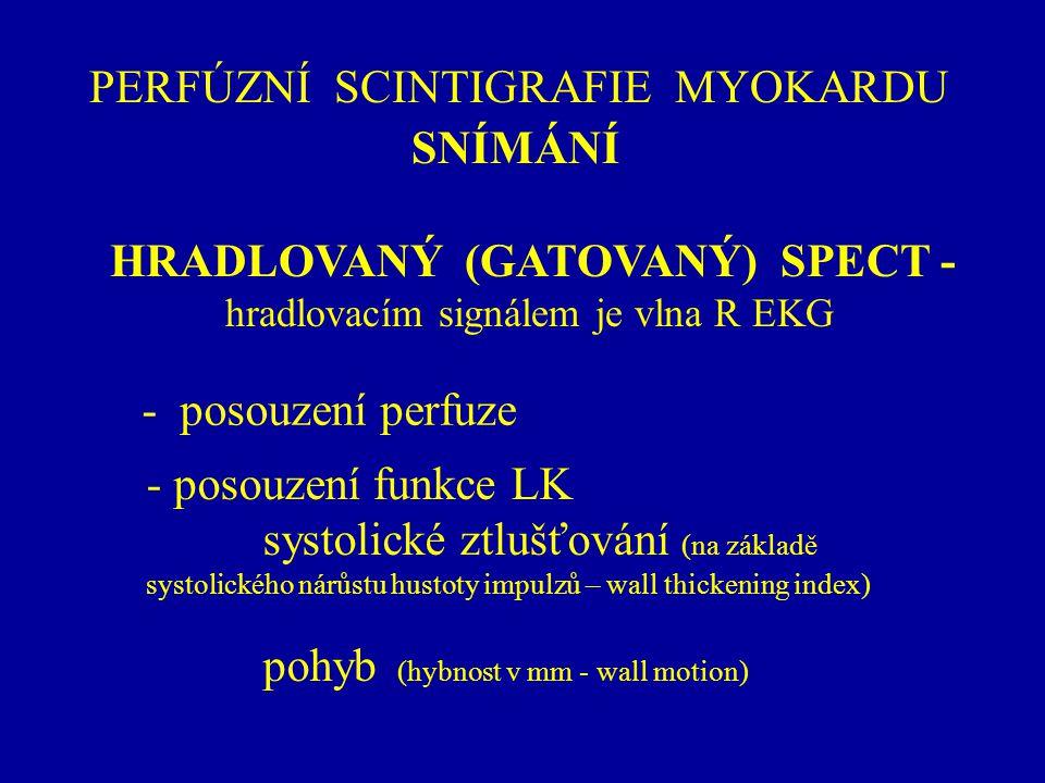 PERFÚZNÍ SCINTIGRAFIE MYOKARDU SNÍMÁNÍ