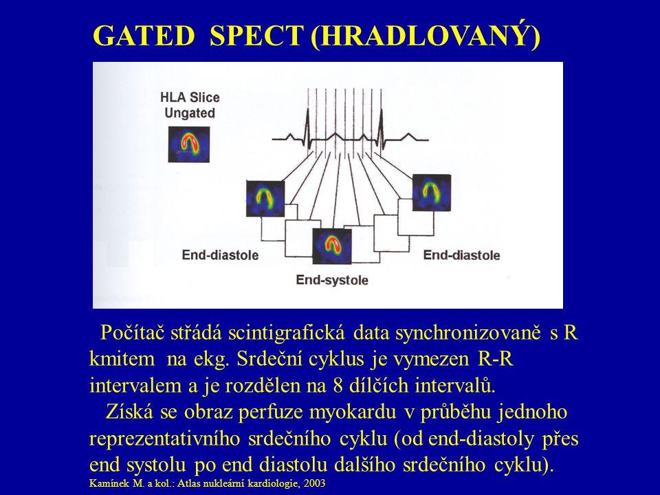 GATED SPECT (HRADLOVANÝ)