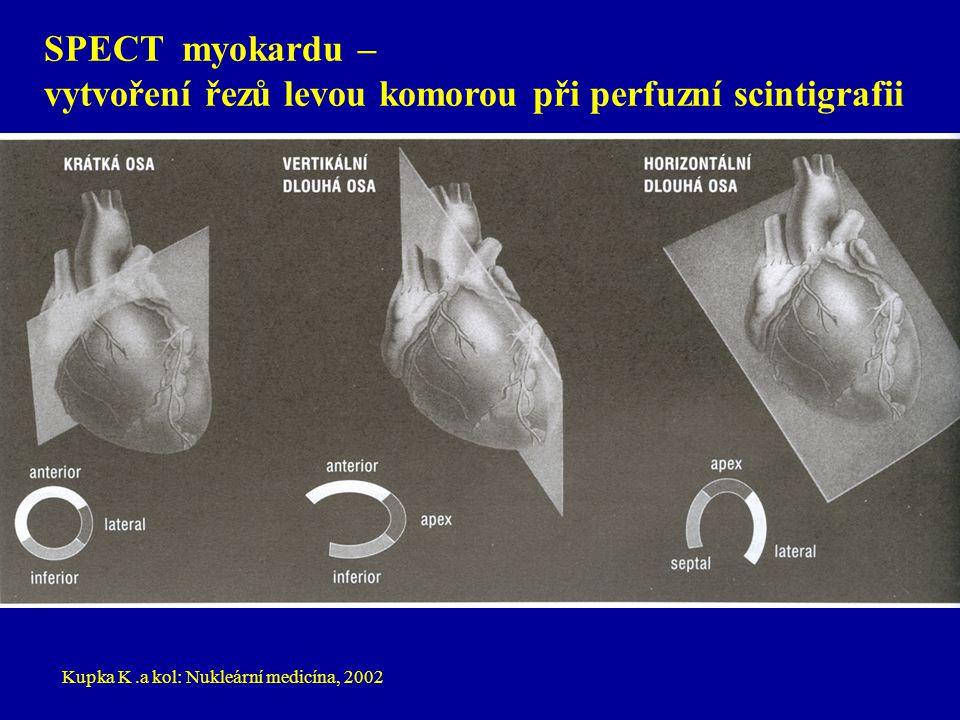 vytvoření řezů levou komorou při perfuzní scintigrafii