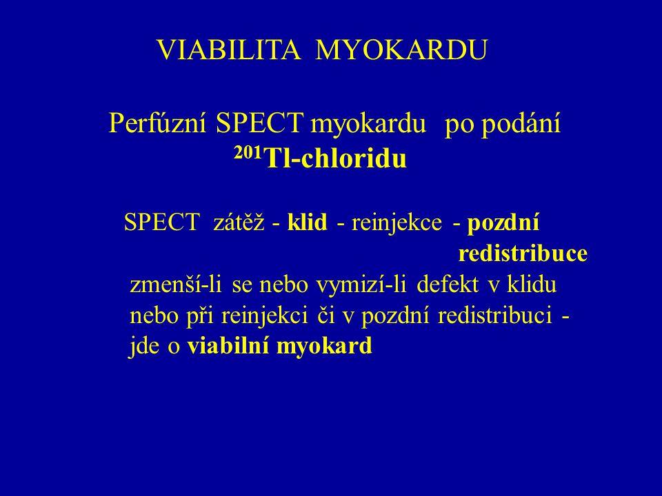 Perfúzní SPECT myokardu po podání 201Tl-chloridu