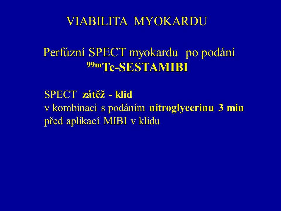 Perfúzní SPECT myokardu po podání 99mTc-SESTAMIBI