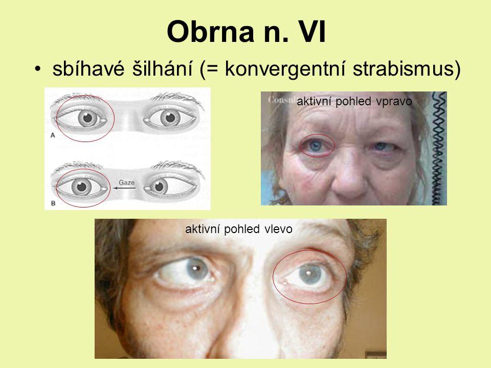 Obrna n. VI sbíhavé šilhání (= konvergentní strabismus)