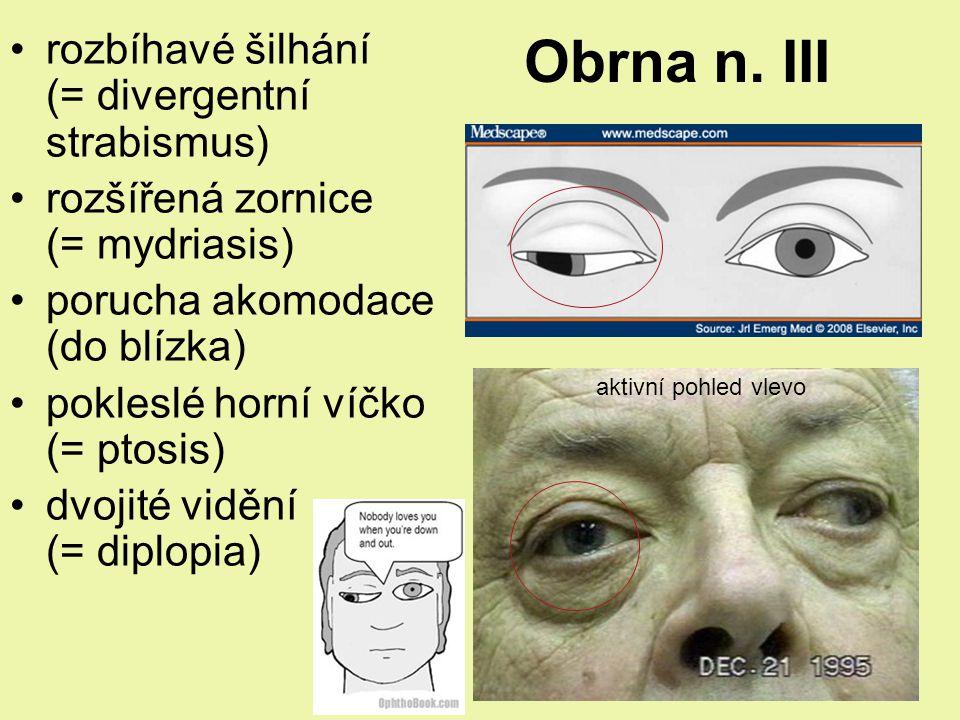 Obrna n. III rozbíhavé šilhání (= divergentní strabismus)
