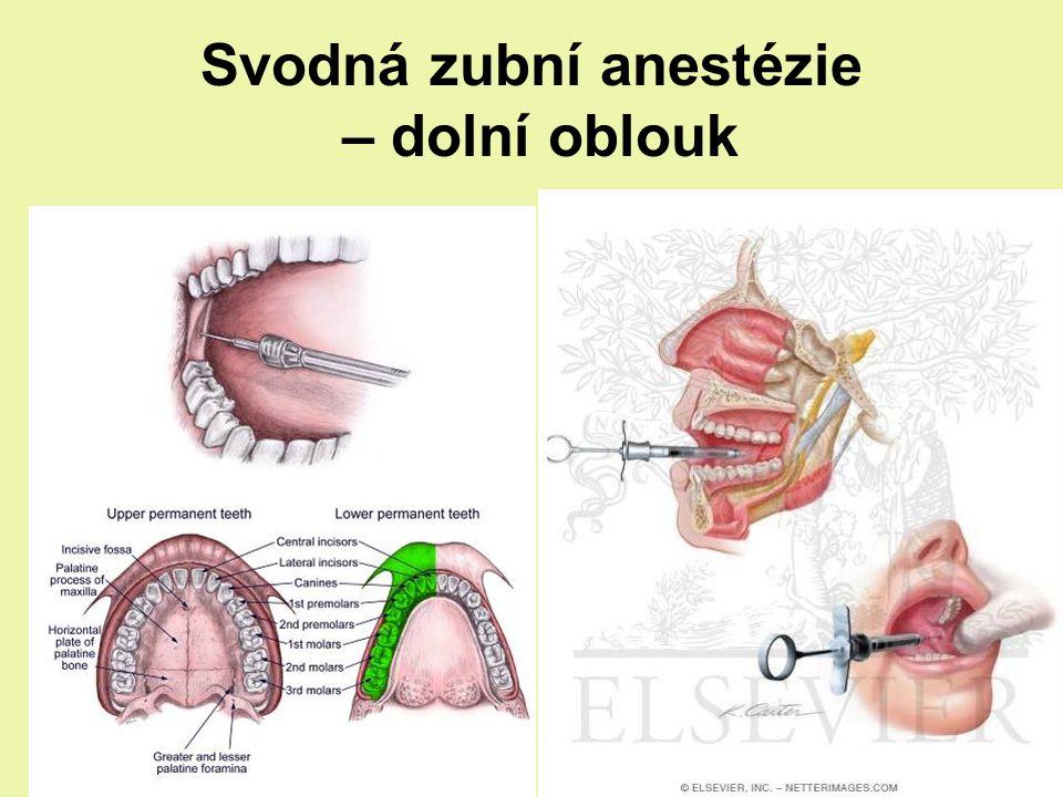 Svodná zubní anestézie – dolní oblouk