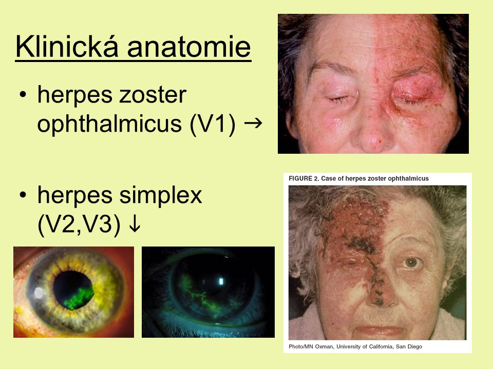 Klinická anatomie herpes zoster ophthalmicus (V1) 