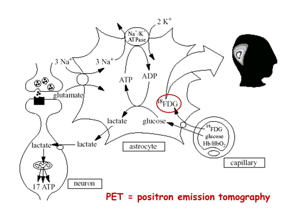 PET = positron emission tomography