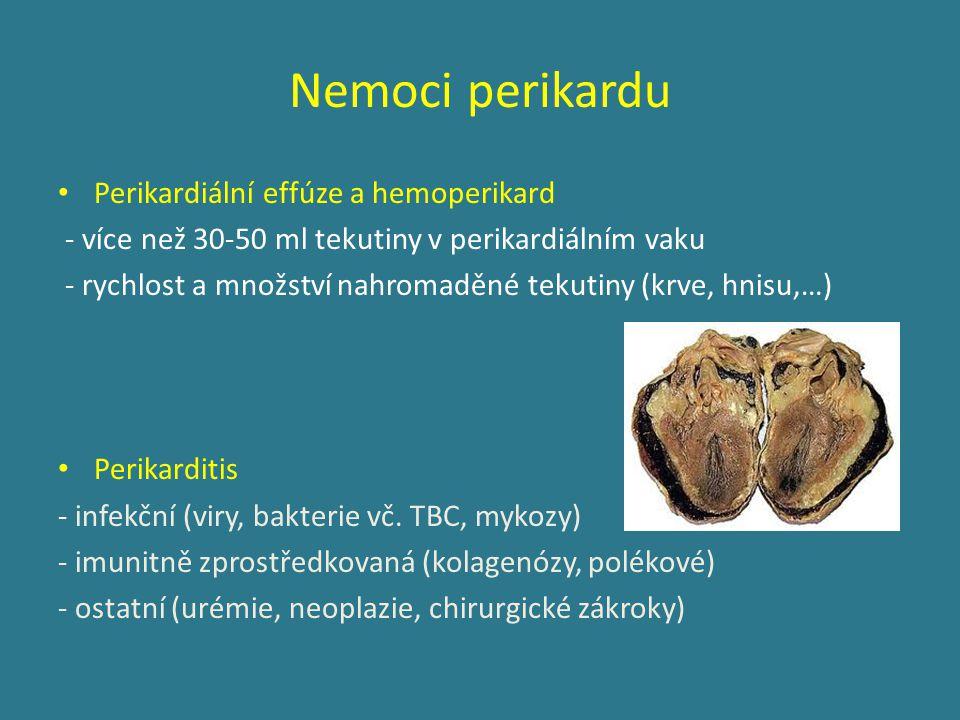 Nemoci perikardu Perikardiální effúze a hemoperikard