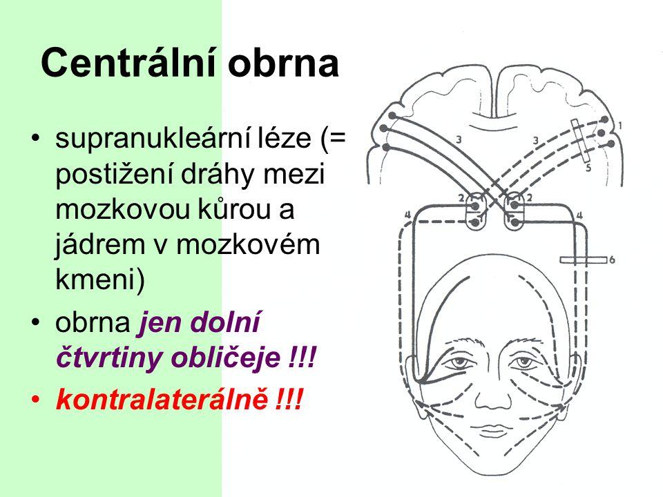 Centrální obrna supranukleární léze (= postižení dráhy mezi mozkovou kůrou a jádrem v mozkovém kmeni)