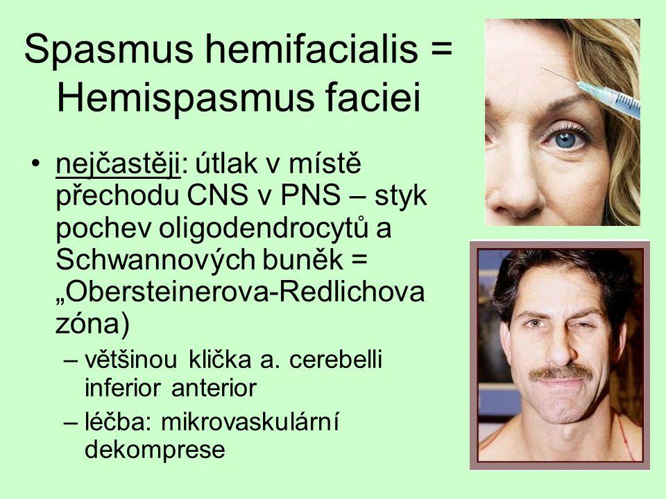 Spasmus hemifacialis = Hemispasmus faciei