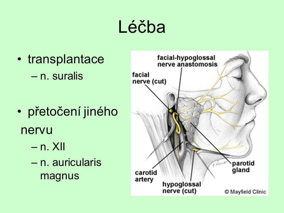 Léčba transplantace přetočení jiného nervu n. suralis n. XII