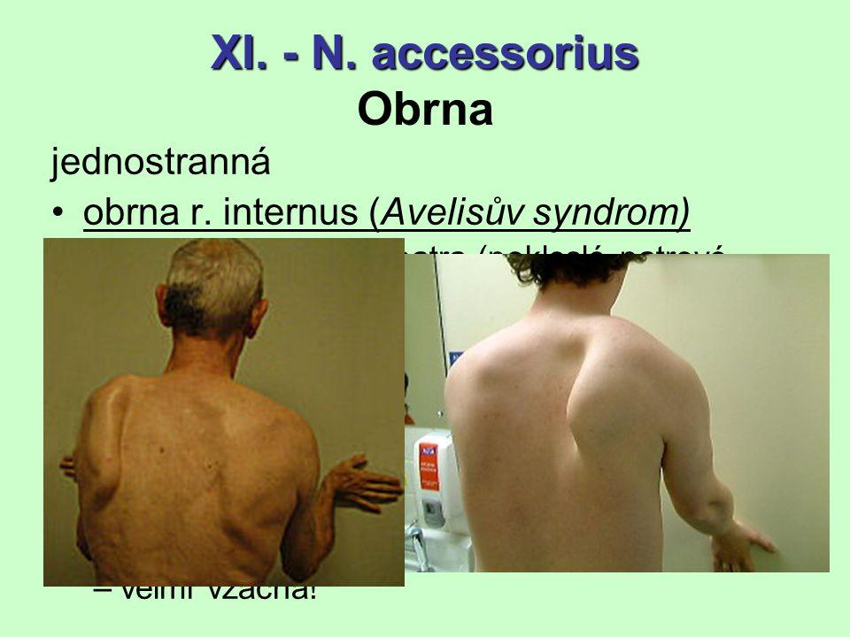 XI. - N. accessorius Obrna