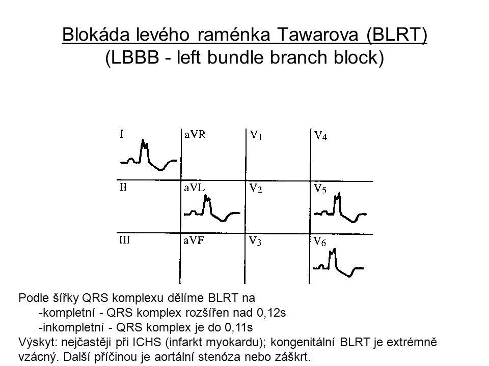 Blokáda levého raménka Tawarova (BLRT) (LBBB - left bundle branch block)
