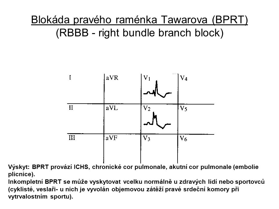 Blokáda pravého raménka Tawarova (BPRT) (RBBB - right bundle branch block)