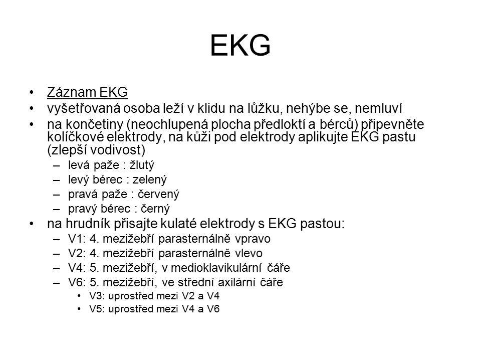 EKG Záznam EKG. vyšetřovaná osoba leží v klidu na lůžku, nehýbe se, nemluví.