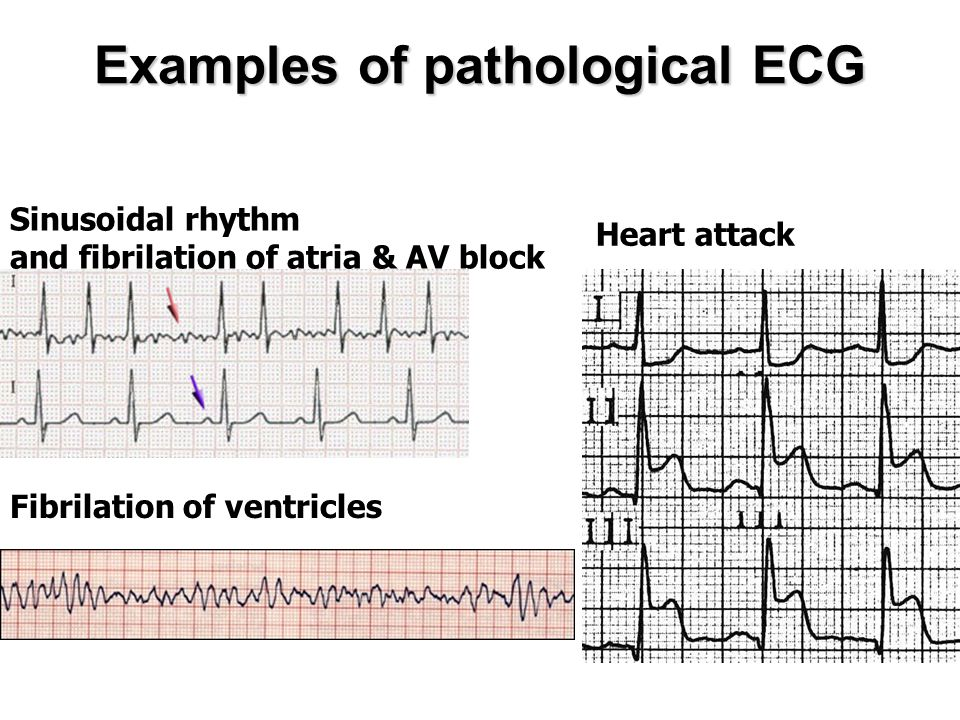 Examples of pathological ECG