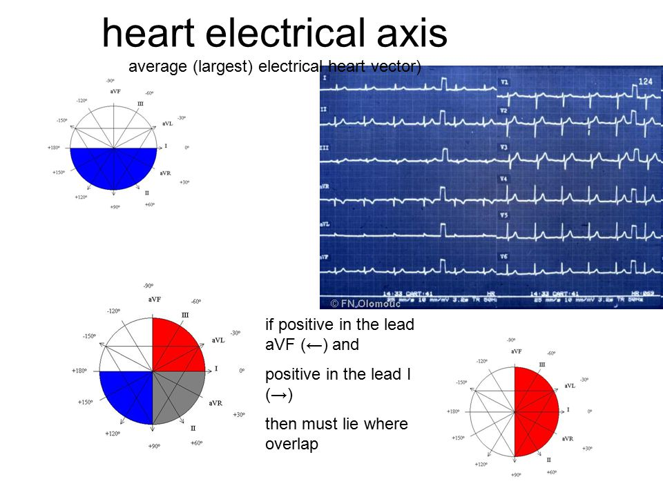 heart electrical axis average (largest) electrical heart vector)