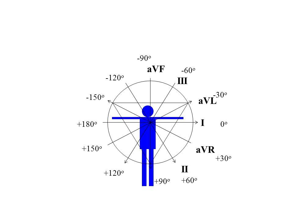 aVF III aVL I aVR II -90o -60o -120o -30o -150o +180o 0o +150o +30o