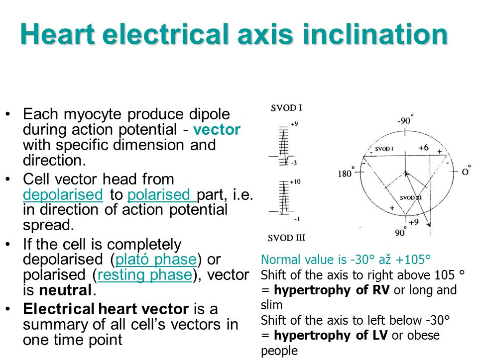 Heart electrical axis inclination