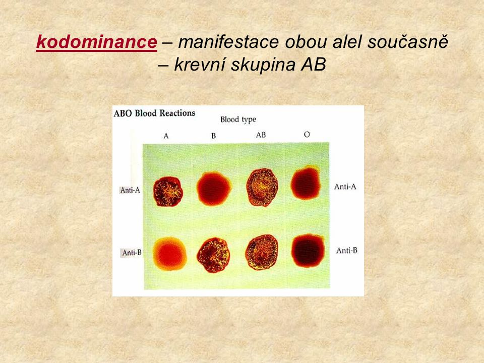 kodominance – manifestace obou alel současně – krevní skupina AB