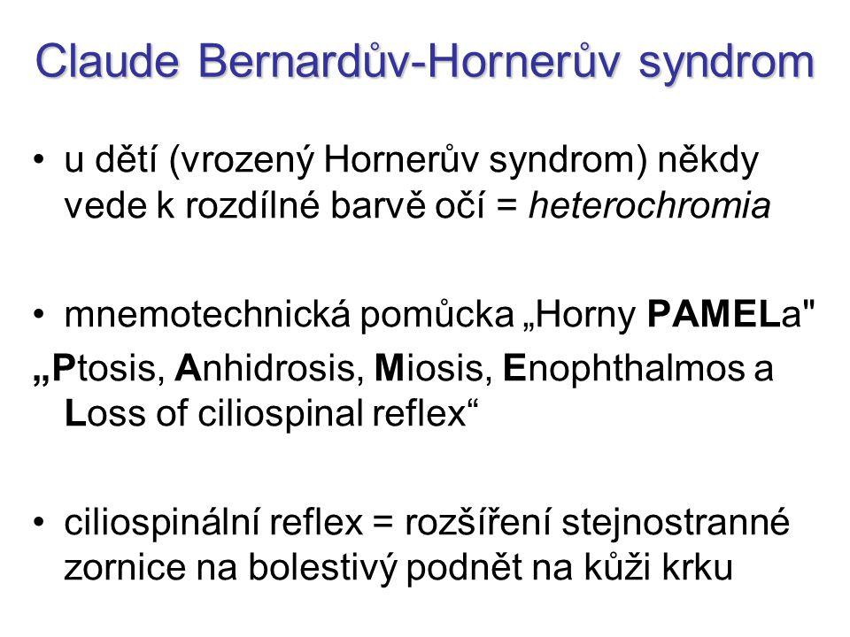 Claude Bernardův-Hornerův syndrom