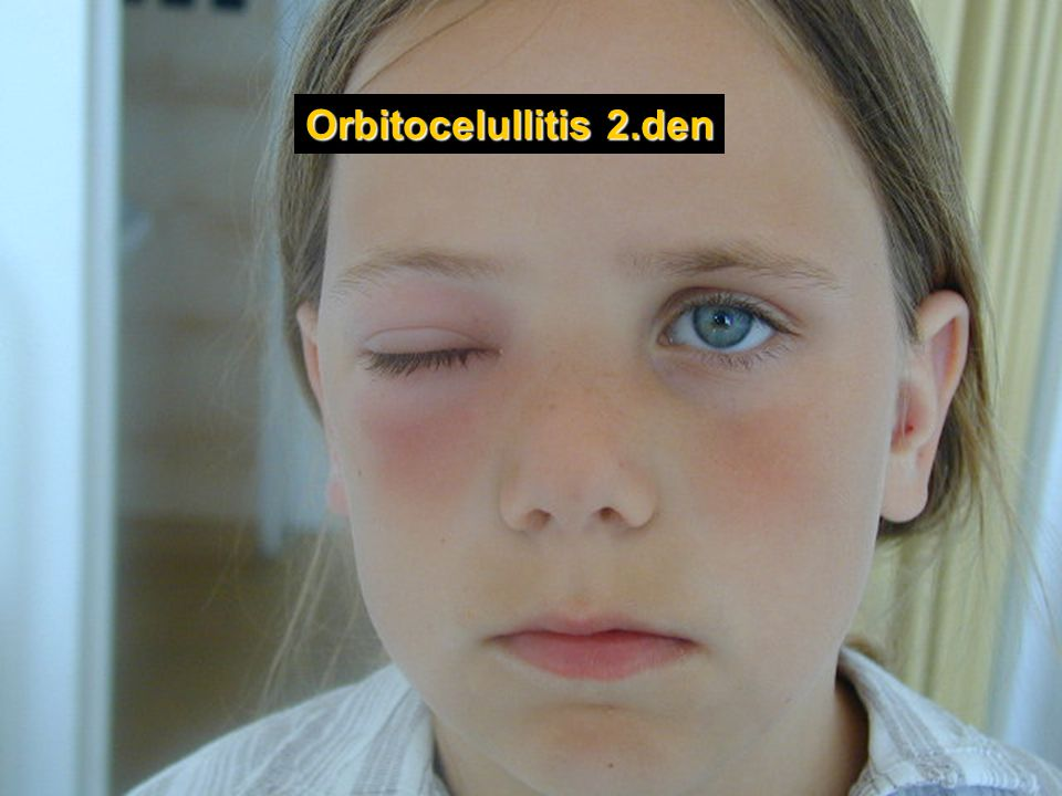 Orbitocelullitis 2.den