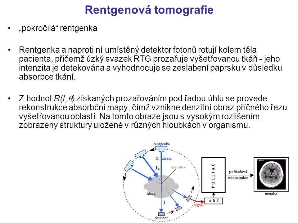 Rentgenová tomografie