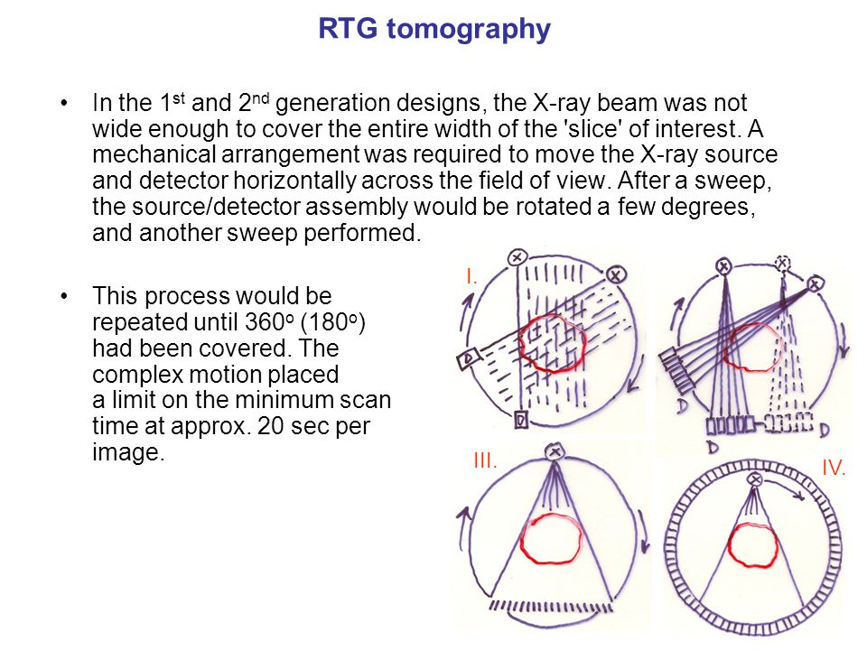 RTG tomography