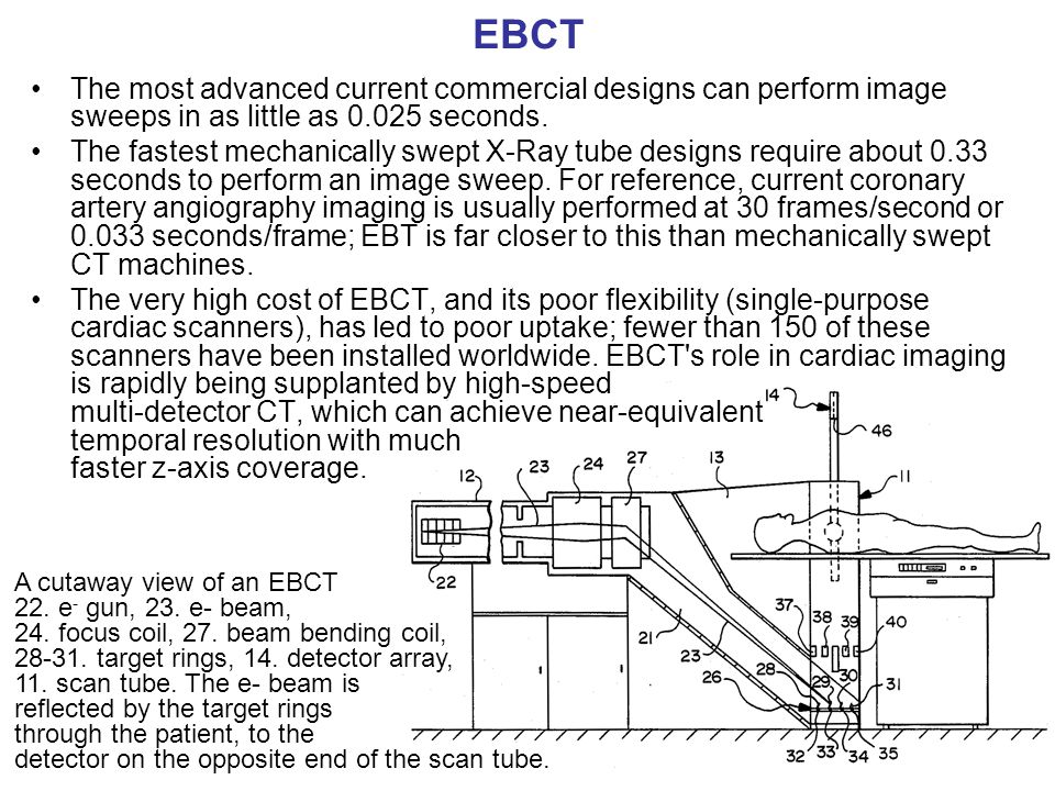 EBCT The most advanced current commercial designs can perform image sweeps in as little as 0.025 seconds.