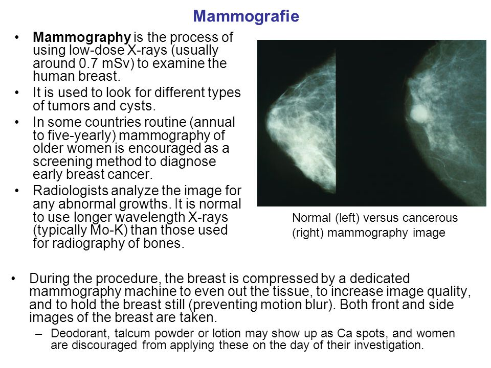Mammografie Mammography is the process of using low-dose X-rays (usually around 0.7 mSv) to examine the human breast.