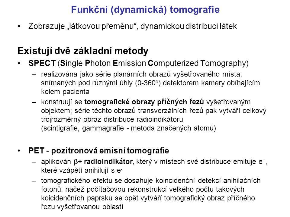 Funkční (dynamická) tomografie
