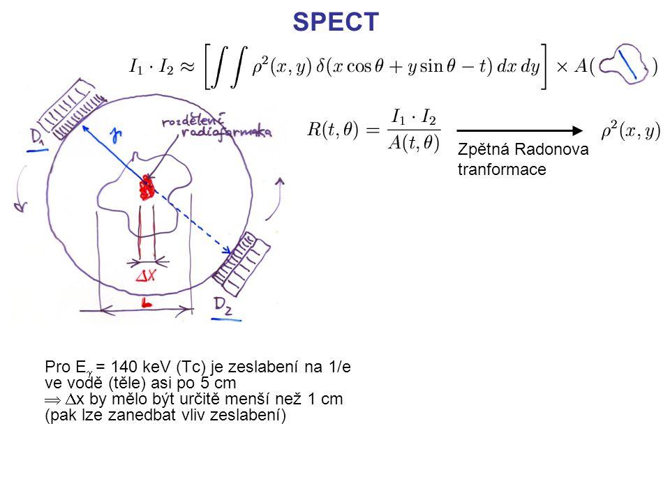 SPECT Zpětná Radonova tranformace