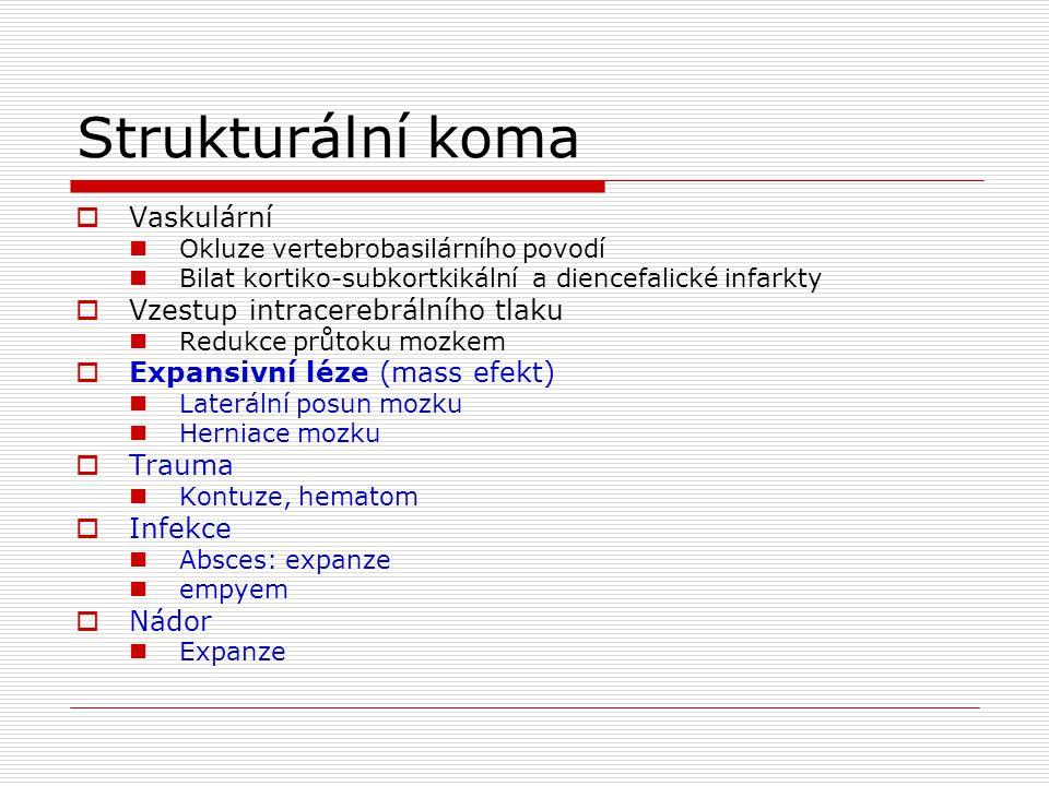 Strukturální koma Vaskulární Vzestup intracerebrálního tlaku
