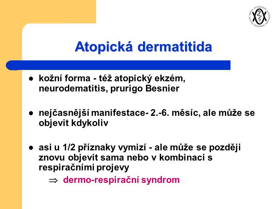 Atopická dermatitida kožní forma - též atopický ekzém, neurodematitis, prurigo Besnier.