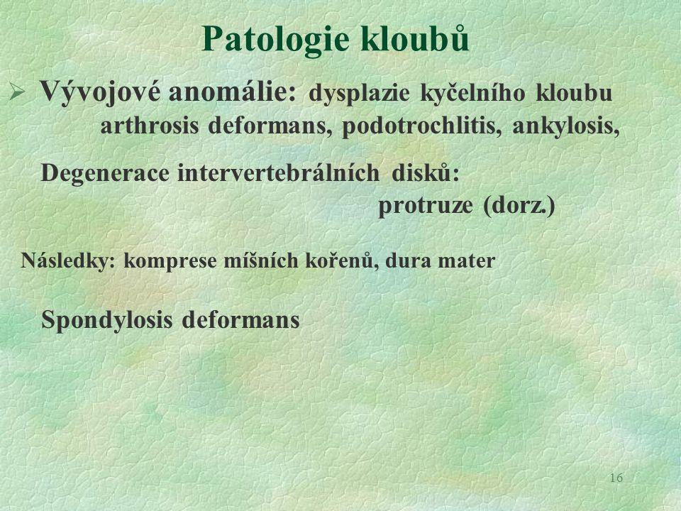 Patologie kloubů Vývojové anomálie: dysplazie kyčelního kloubu