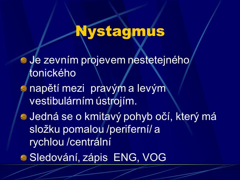 Nystagmus Je zevním projevem nestetejného tonického